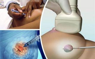 Чем отличается пункция от биопсии