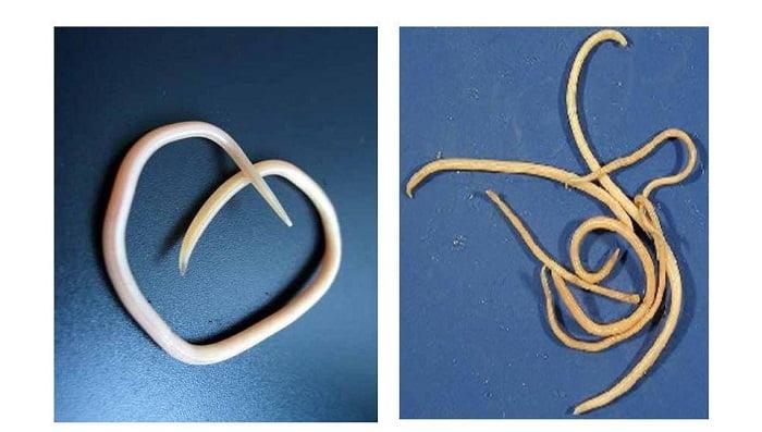 Глисты и острицы - фото, это одно и тоже, в чем разница, чем отличаются, чем отличаются аскариды от остриц